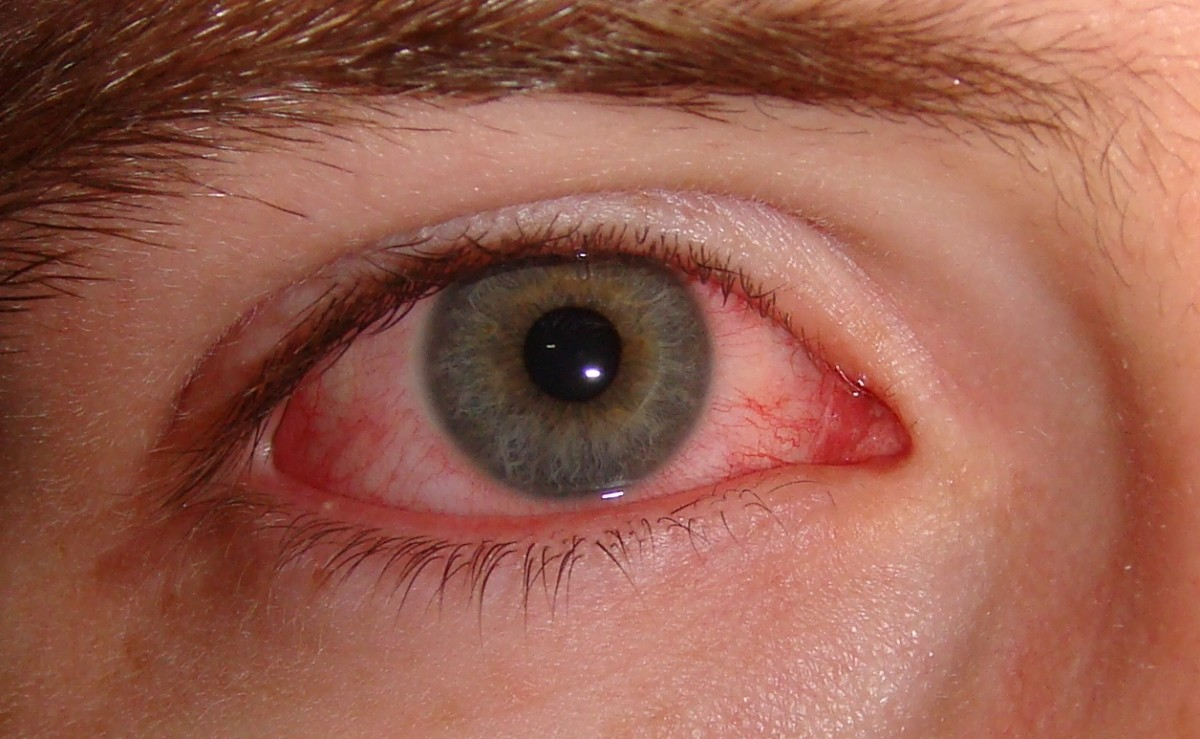 Pink eye can affect one or both eyes and may be highly contagious for up to two weeks after syptoms start.