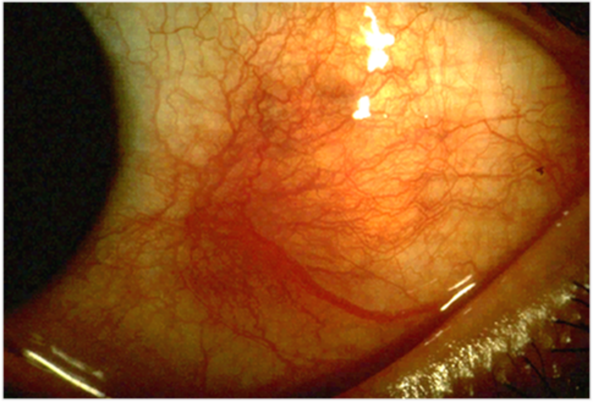 Scleritis is an inflammation of the sclera, or whites of the eyes.  The sclera is the tough membrane that forms the outer wall of your eyeball.