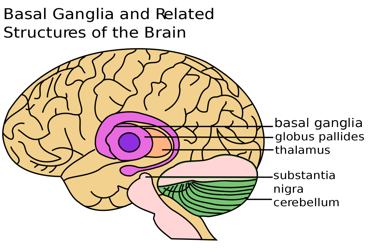In Parkinson's disease, cells in the substantia nigra die.