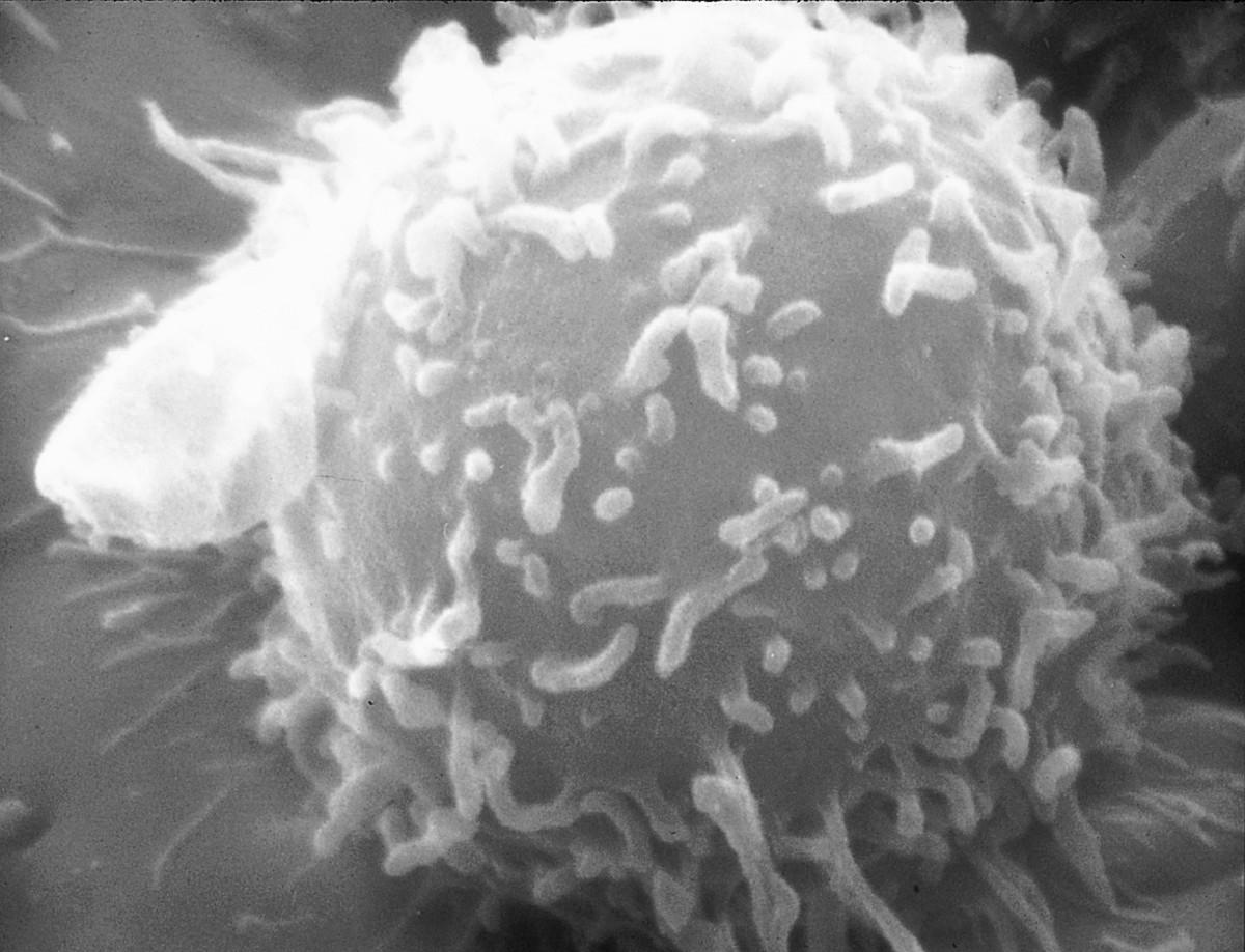 A human lymphocyte; B and T lymphocytes are difficult to distinguish visually