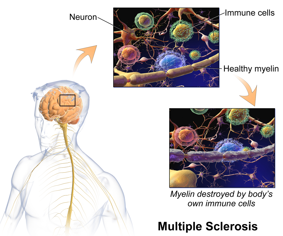 Damage to myelin in multiple sclerosis