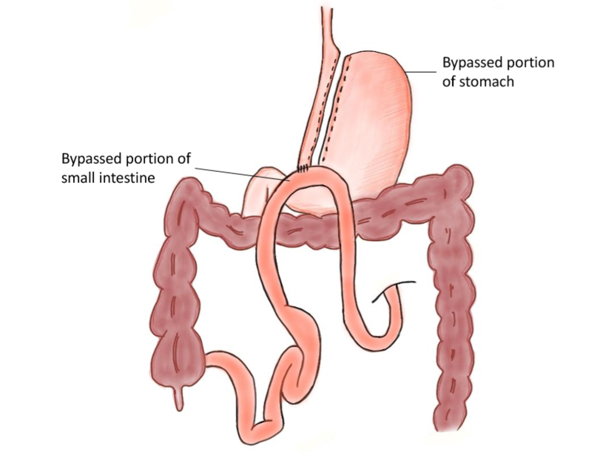 Diagram of a mini-gastric bypass, also known as a single-anastomosis bypass or an omega loop gastric bypass.