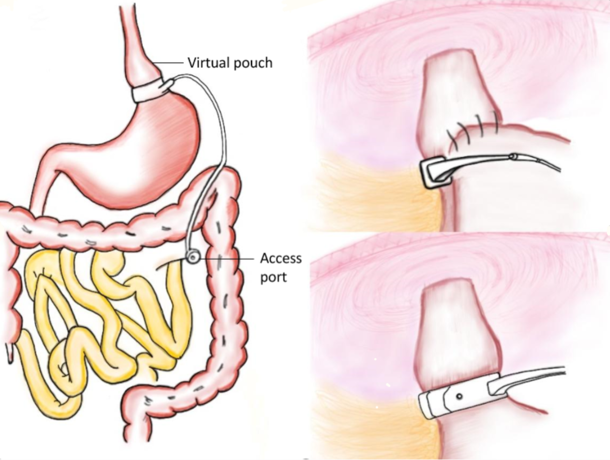 Diagram of the gastric banding procedure.