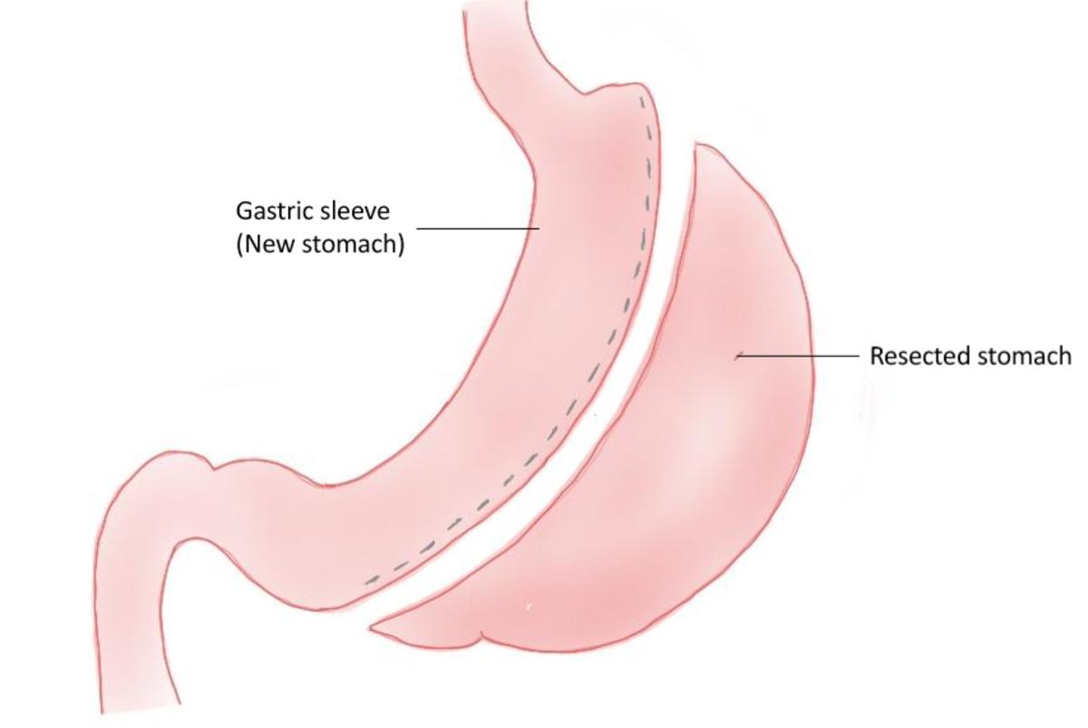 Diagram of a sleeve gastrectomy.