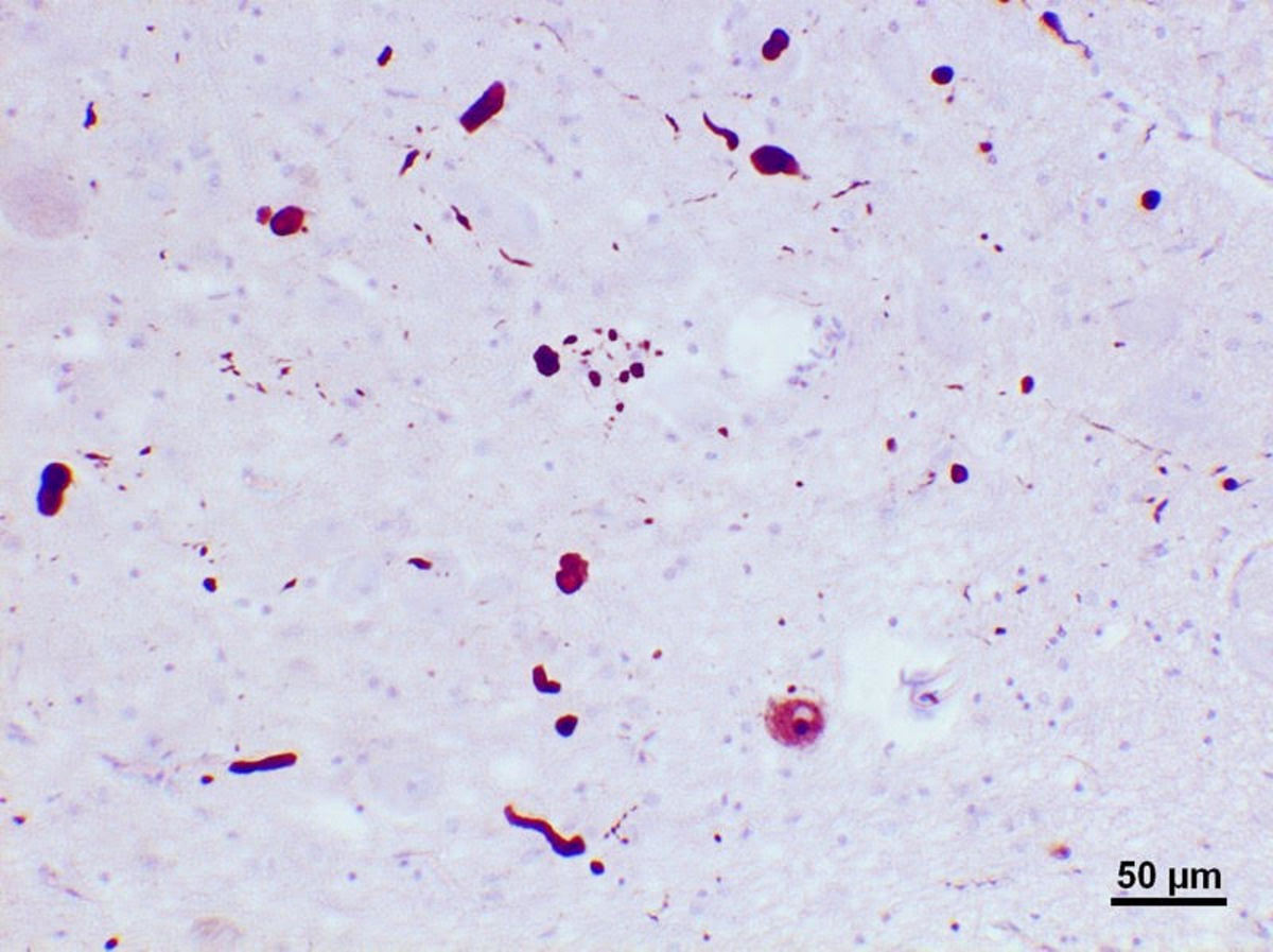 Lewy bodies and neurites in the substantia nigra