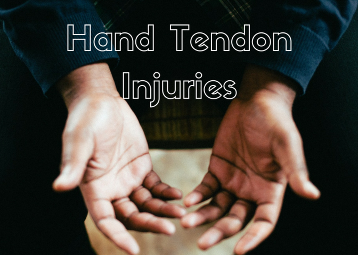 Make sure you know how to properly treat a hand tendon injury.