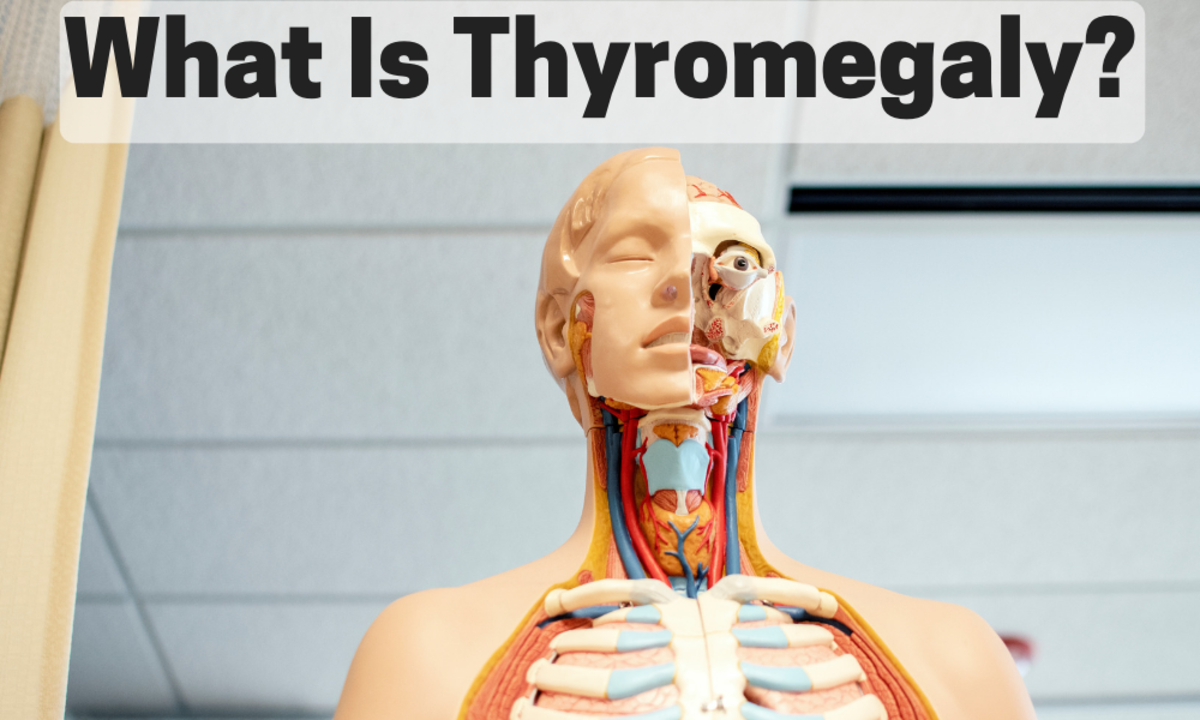 Thyromegaly, also known as goiter, is the enlargement of the thyroid gland and it can cause series health complications.