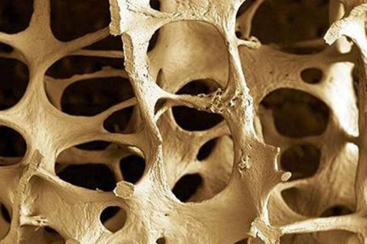 Reducing the Risk of Osteoporosis: What You May Not Know