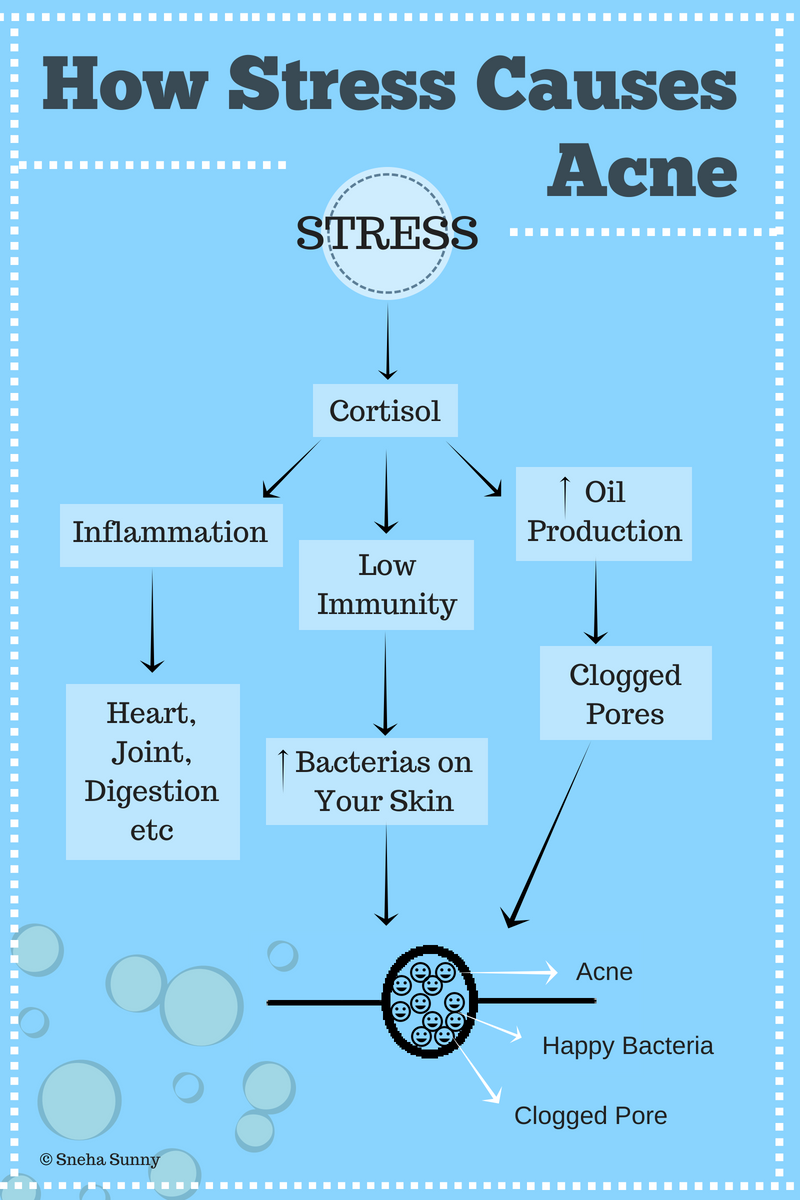 The Basic Mechanism of Acne Formation Due to Stress