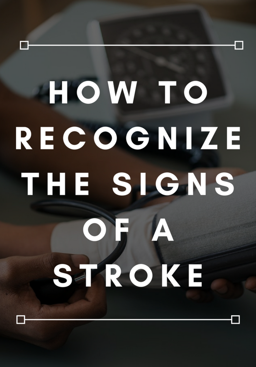 Recognizing when someone is having a stroke can help minimize the damage.
