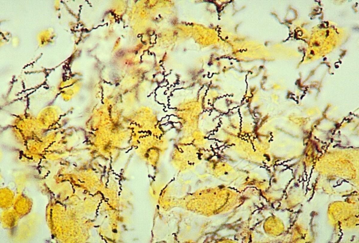 Yaws Disease: Causal Bacterium, Symptoms, and Treatment Efforts