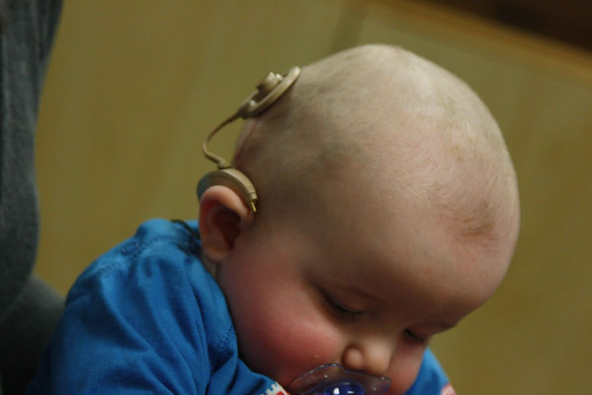 Infant with a cochlear implant