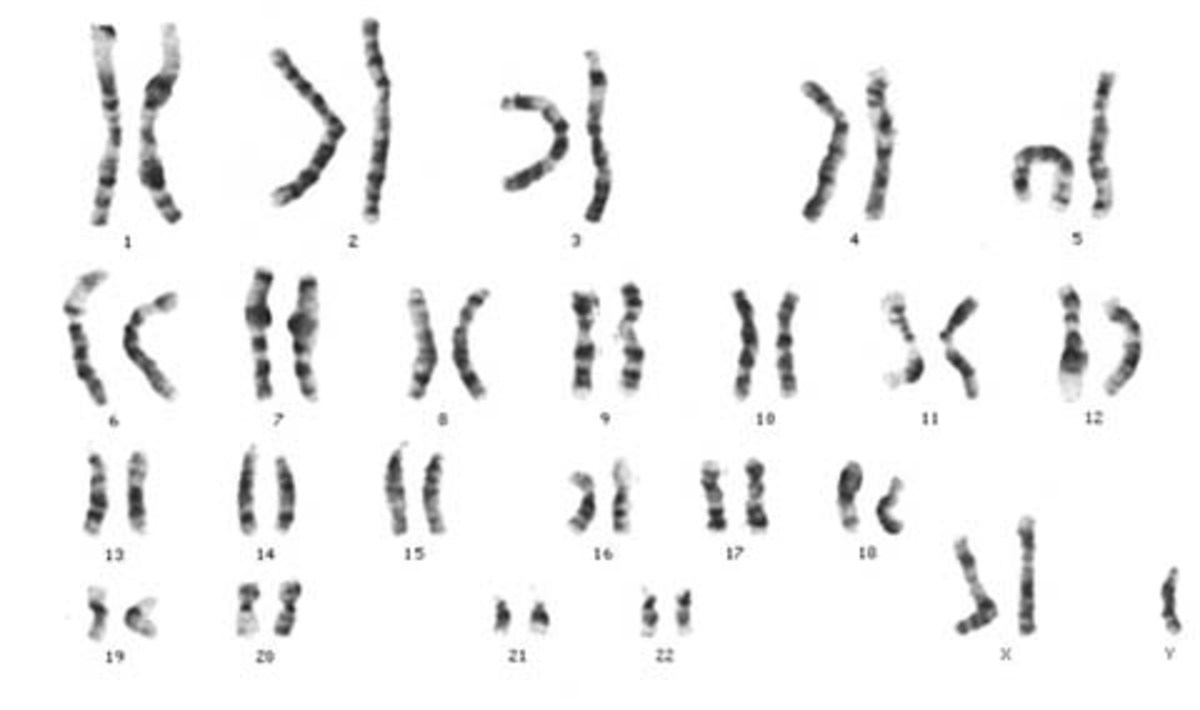 This karyotype provides a picture of the chromosomes taken through CVS or amniocentesis. This particular individual has two X chromosomes and a Y chromosome (XXY), consistent with Klinefelter's Syndrome.