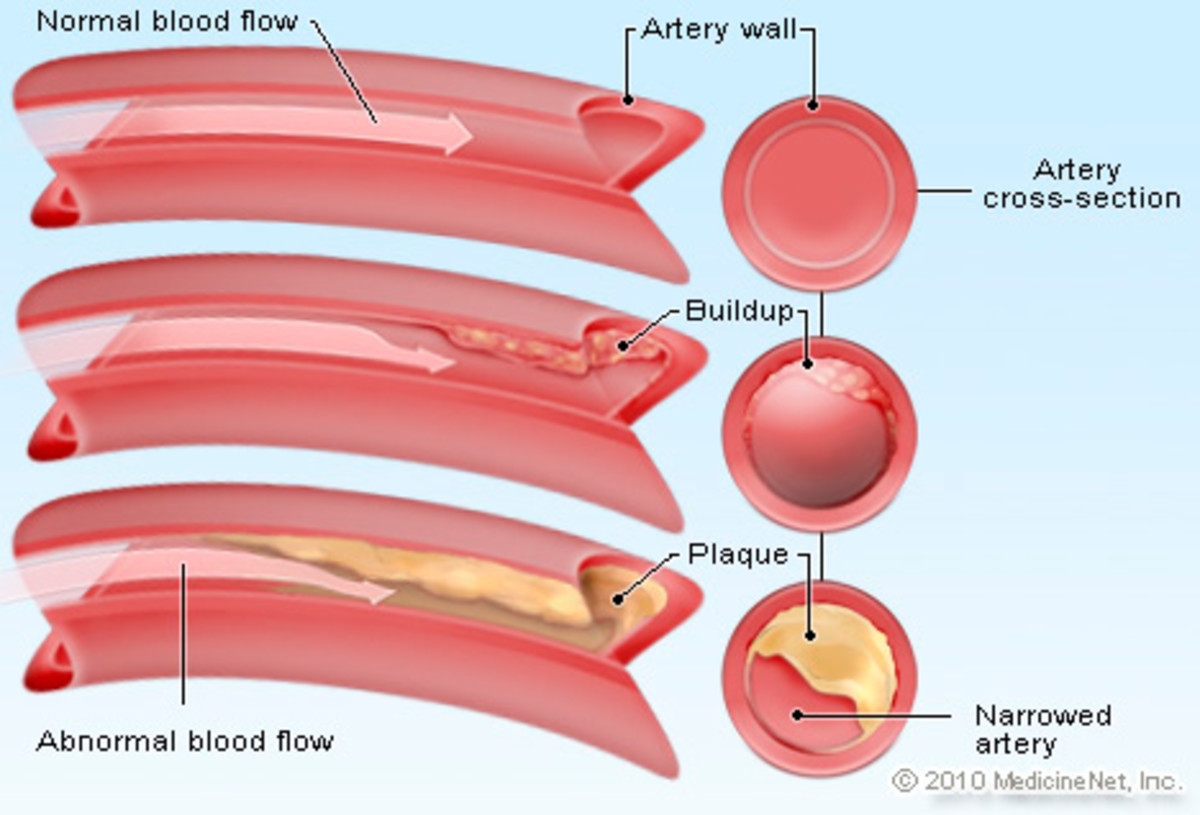 The effect of cholesterol buildup in the artery on blood flow