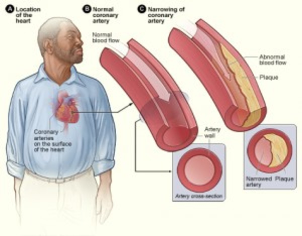 The buildup of plaque in the coronary artery