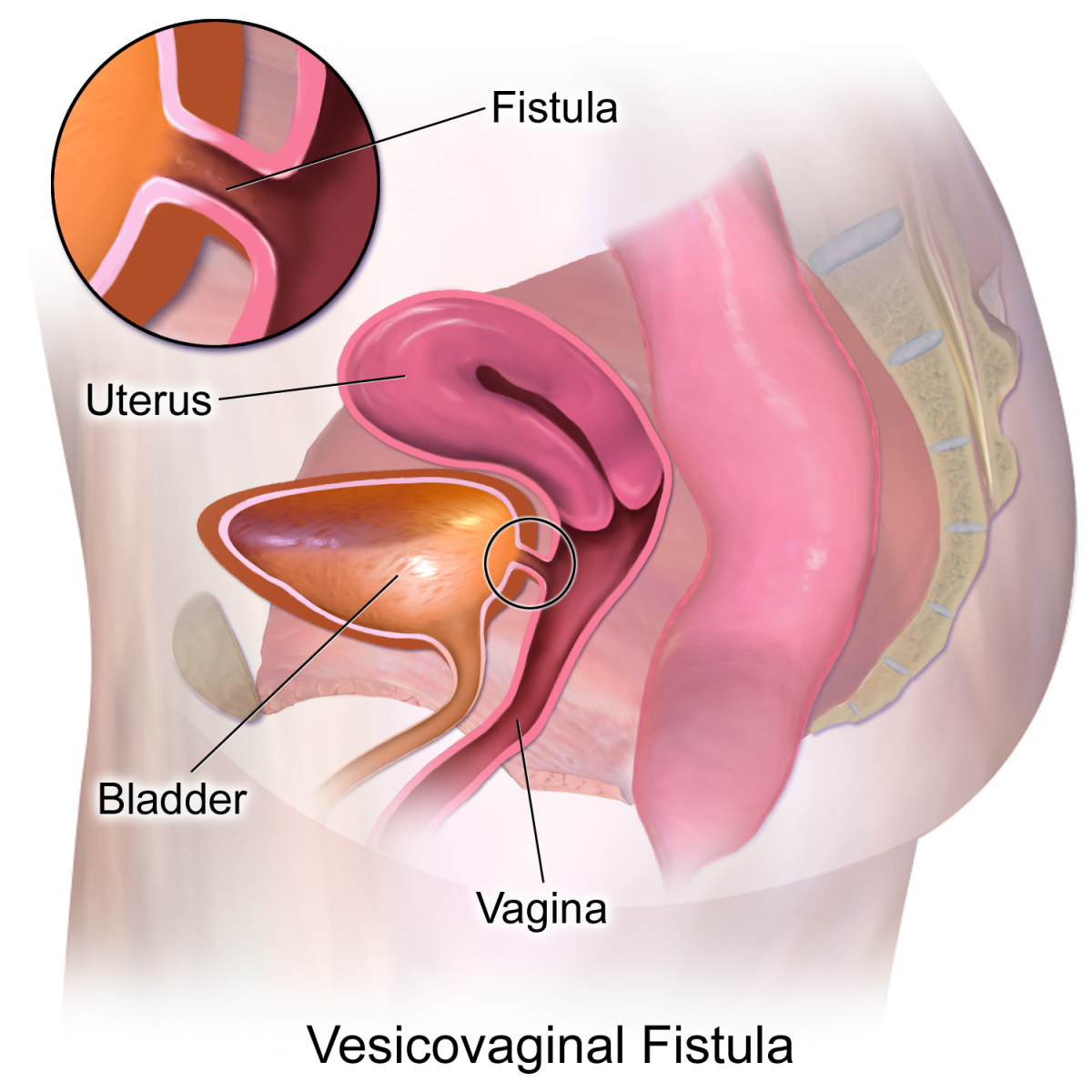 How Prenatal Events Influence the Development of a Vesicovaginal Fistula