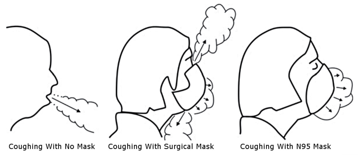 Figure 4. Side view of air leakage around face masks, adapted from Figure 5, Section d in Tang et. al. (2009).