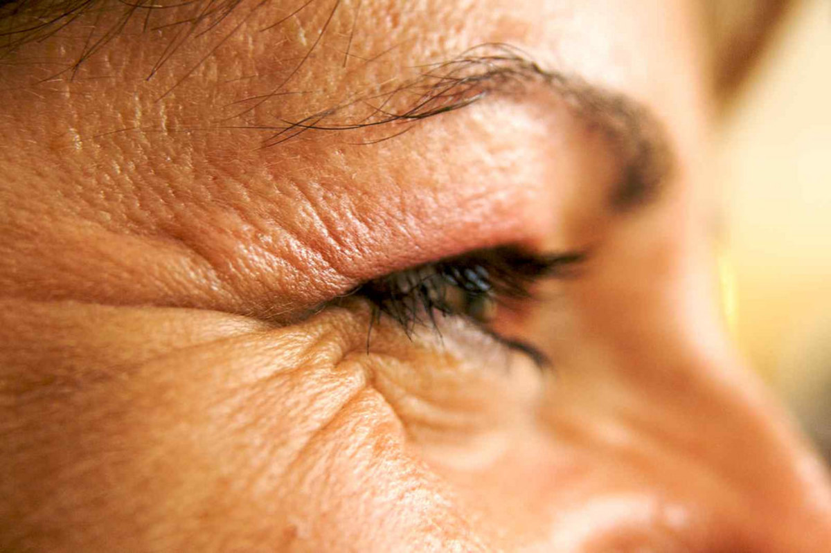 Eye Wrinkles that have obviously not yet been treated by glycerin.