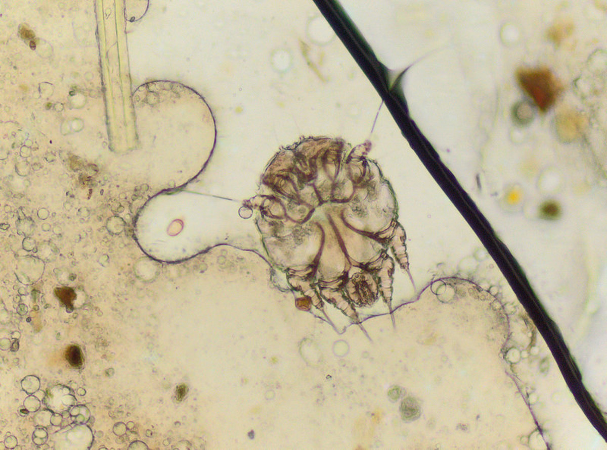 Micrograph of the microscopic human itch mite, or scabies mite (Sarcoptes scabiei hominis). These mites burrow into the skin causing intense itching.