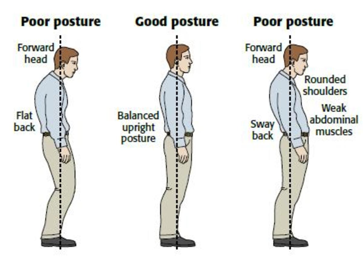 How to Fix Your Bad Posture