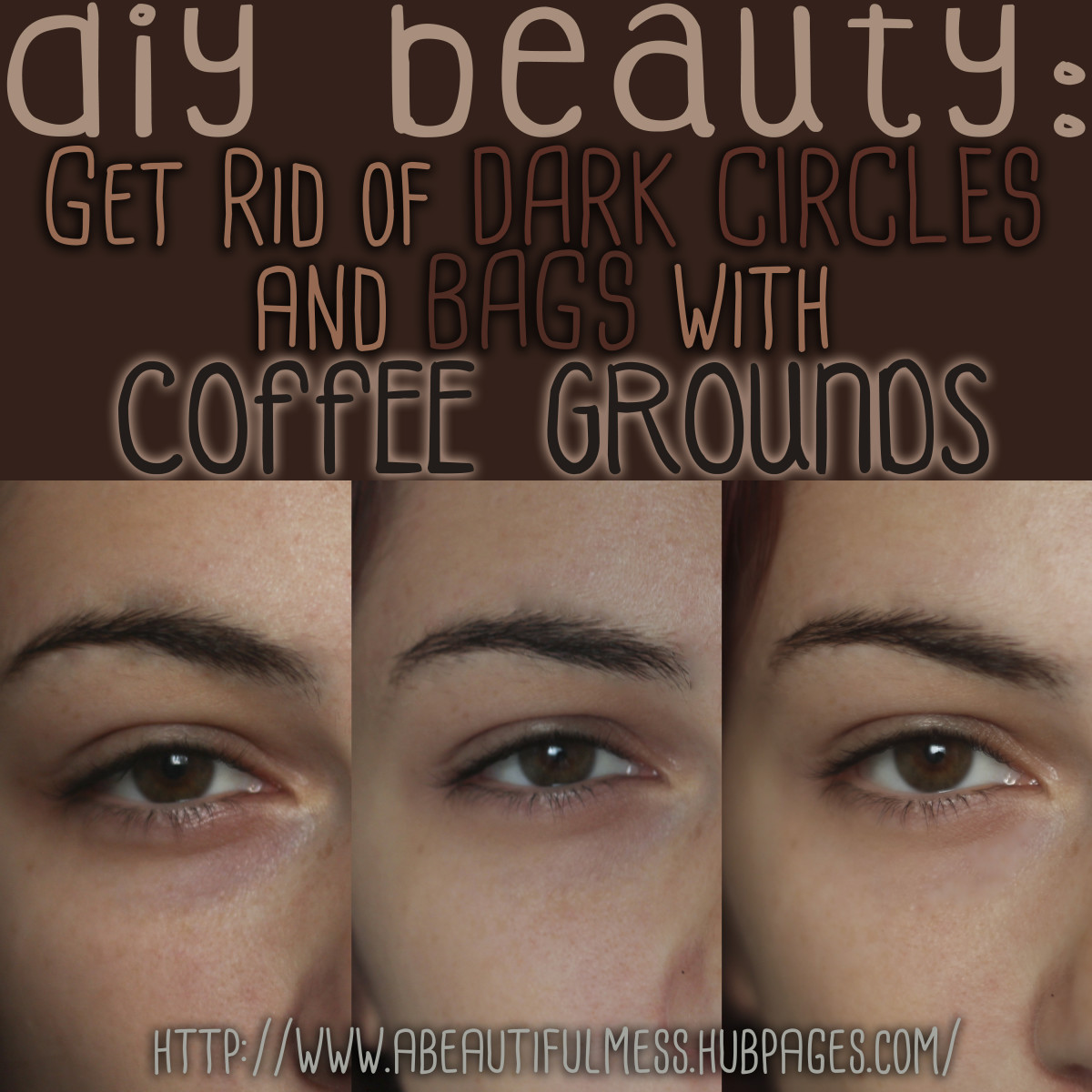 Diy Beauty Get Rid Of Undereye Bags Dark Circles With