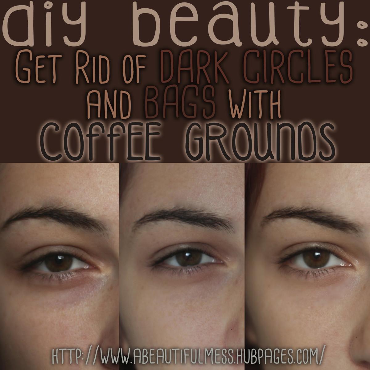 DIY Beauty Get Rid of Undereye Bags Dark Circles with Coffee