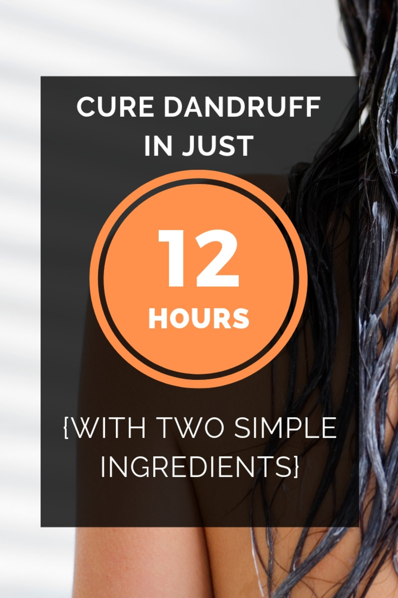 These natural ingredients can provide effective dandruff treatment that will keep your scalp healthy.