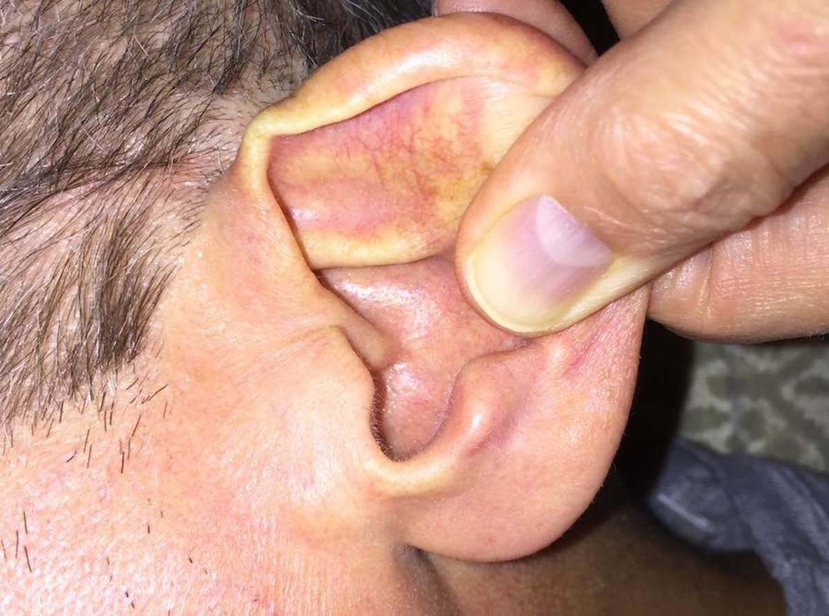 Help the softener work its way deeper by pulling on the earlobe.