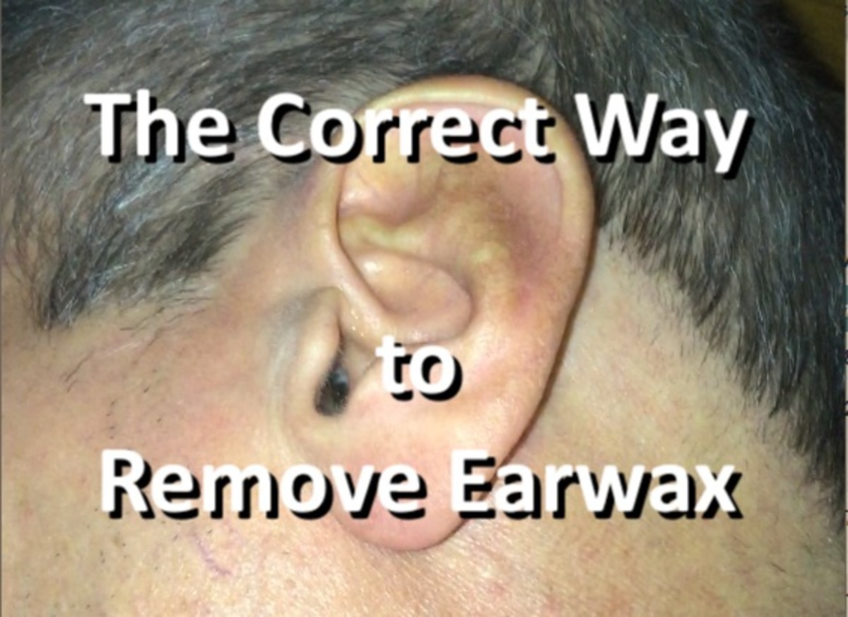 My ear with impacted wax visible