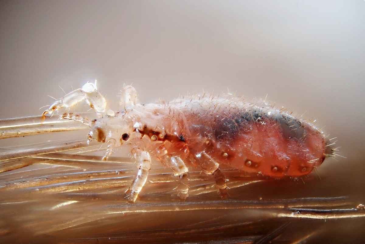 A female head louse