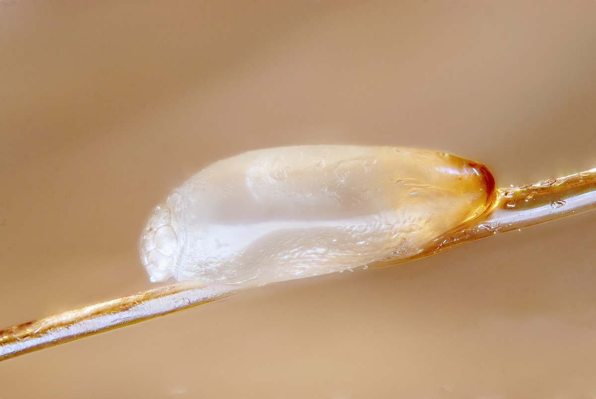 A nit of a head louse; the nit was photographed after a lice treatment and is dead
