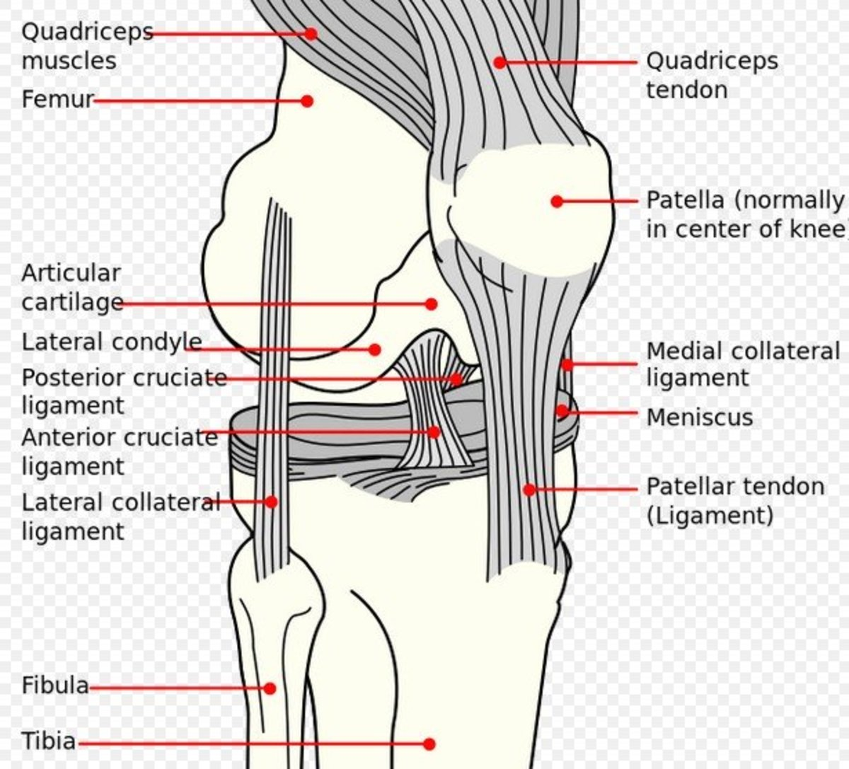 Dog meniscus damage and tear.