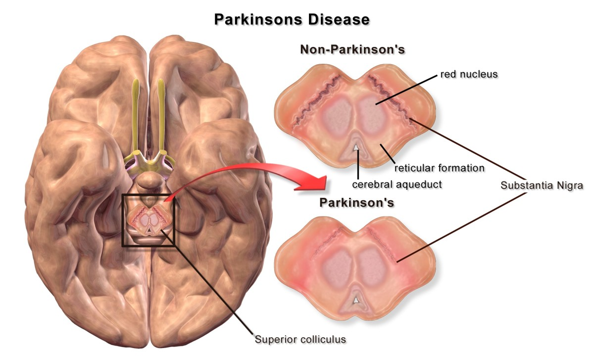 Brain cells in the substantia nigra die in Parkinson's disease. In this illustration the brain is being viewed from below. The top of the picture is the front of the brain.