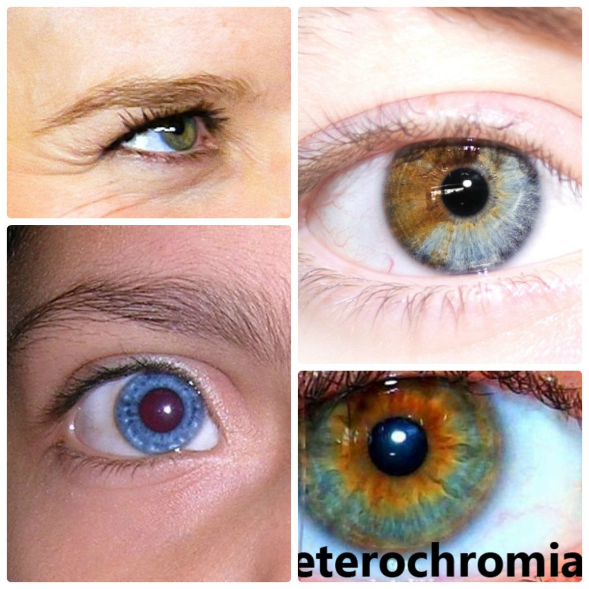 Heterochromia Iridum | People with two different colored eyes