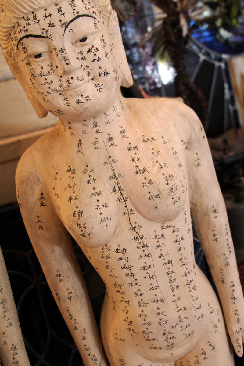 What You Should Know Before Your First Acupuncture Appointment