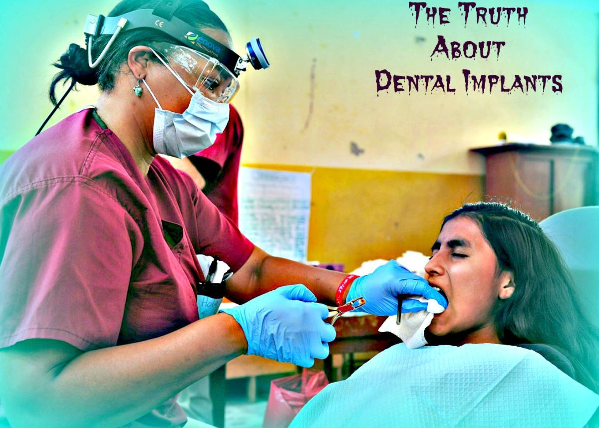 What Dentists Dont Tell You About Dental Implants