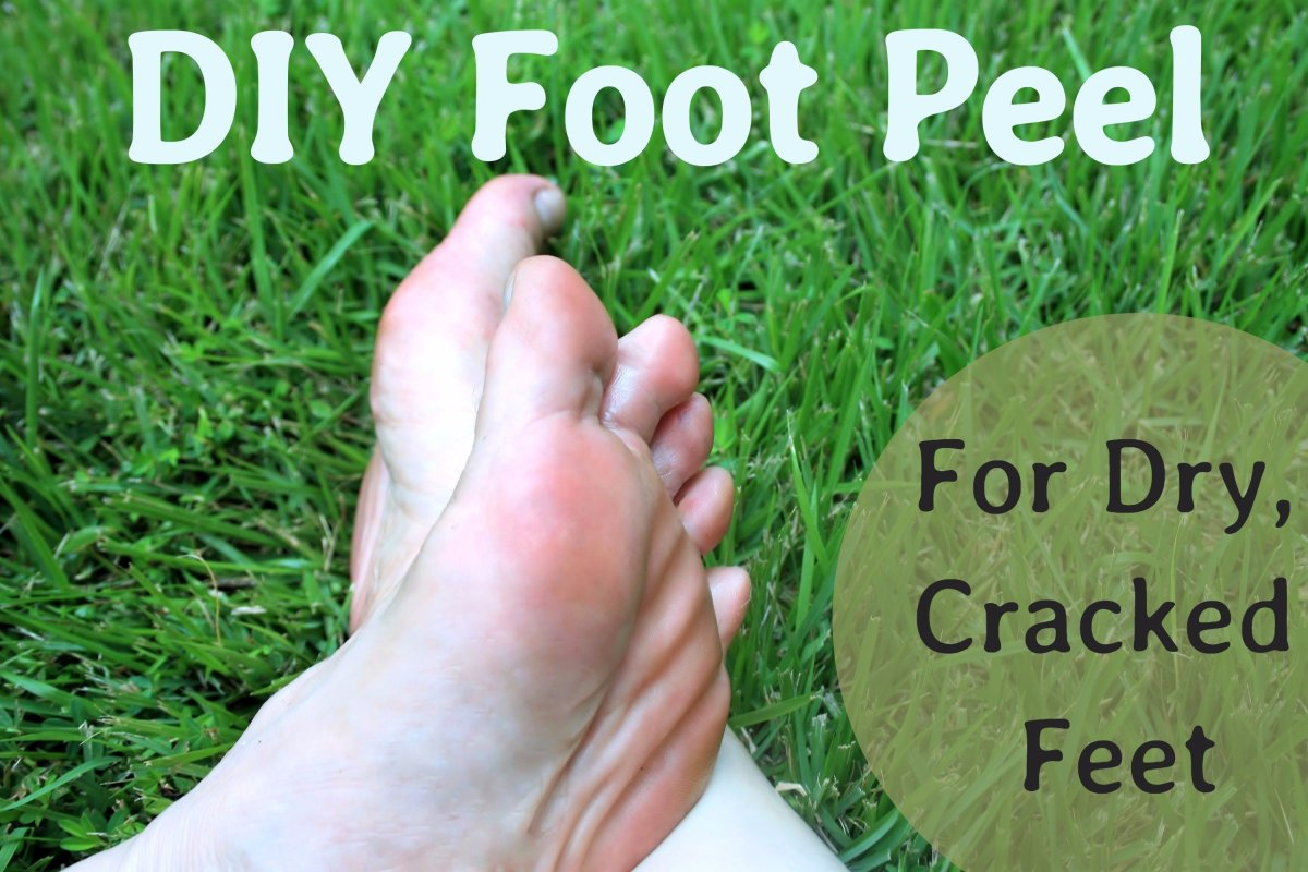 A DIY Peel for Dry, Cracked Feet