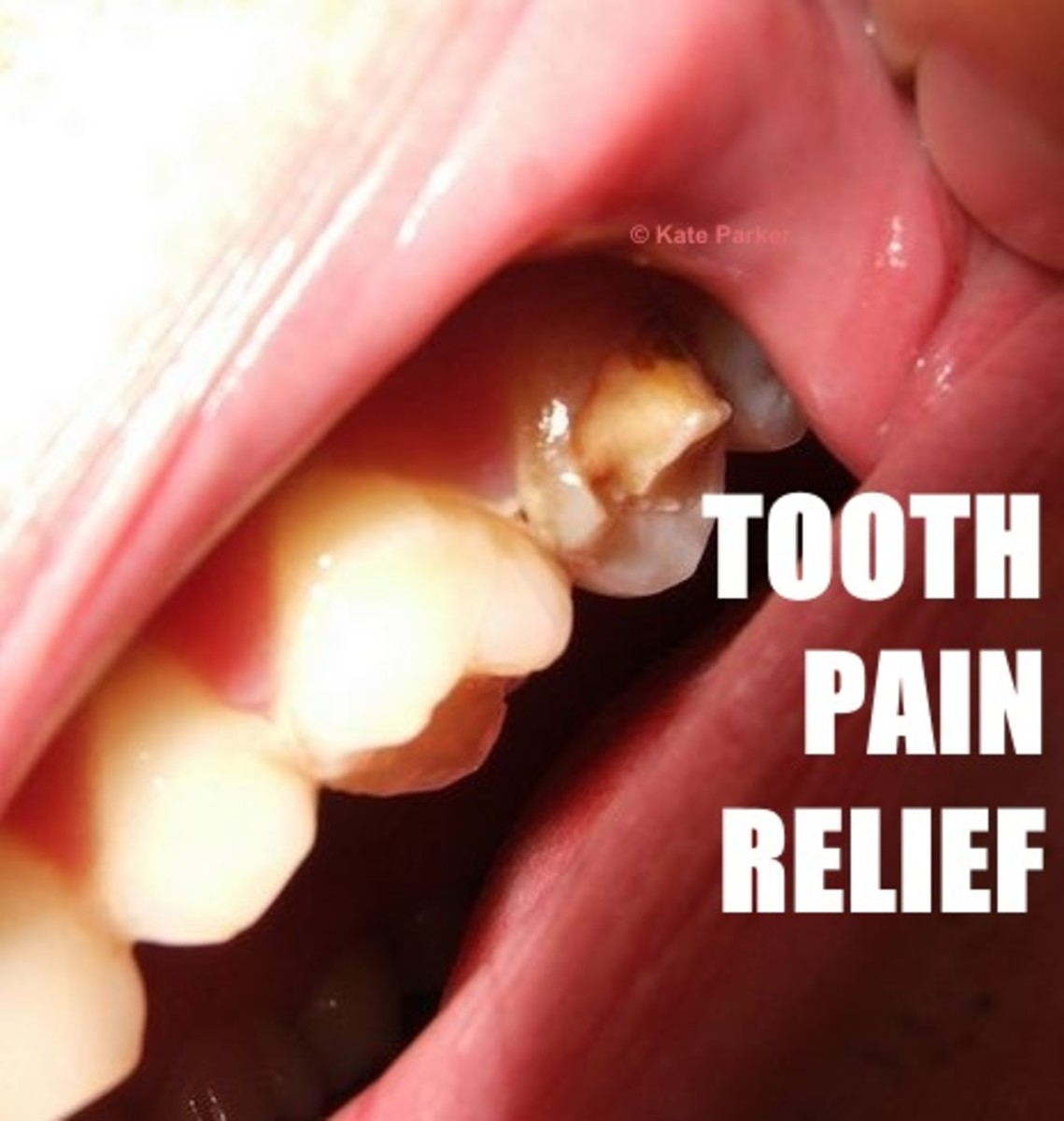 Tooth pain ranges from mildly irritating to horrendously debilitating
