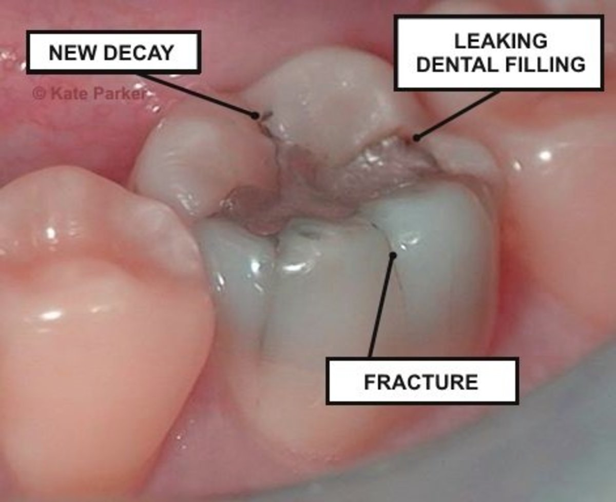 Dental decay, and many other factors, can cause tooth pain to develop