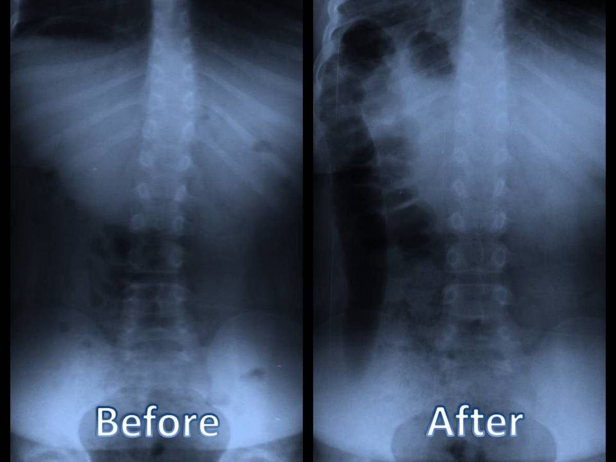 A child's scoliosis before and after chiropractic care.