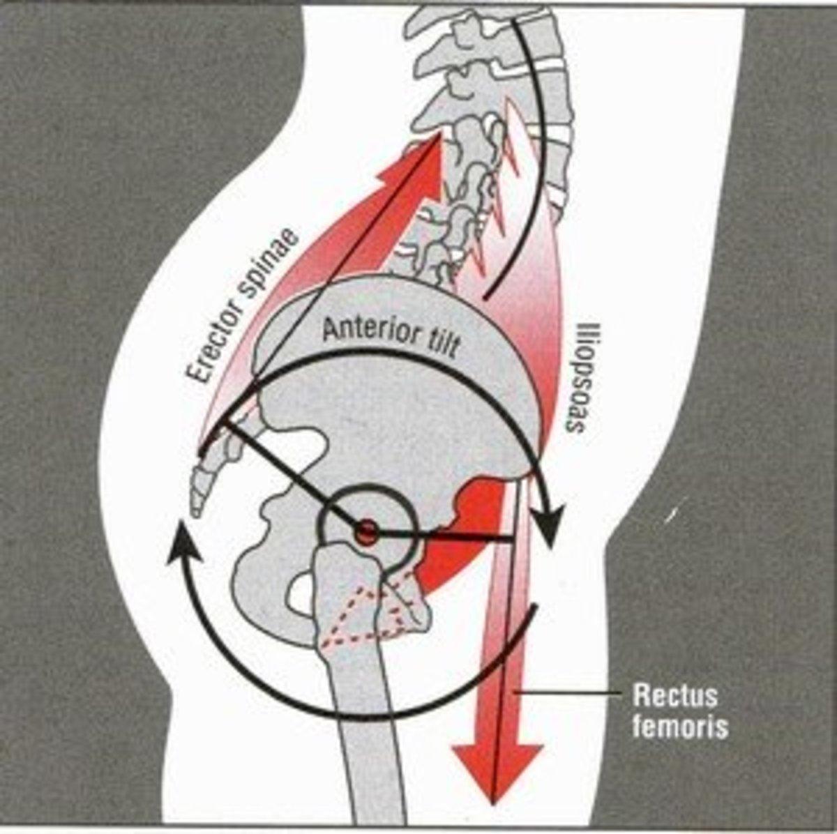 Stretches to fix an anterior pelvic tilt with photos caloriebee publicscrutiny Images