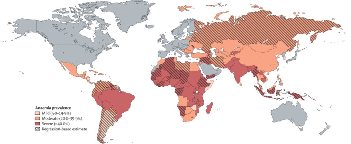 Click on the link to see a larger detailed map showing the wide extent of anemia across the planet.
