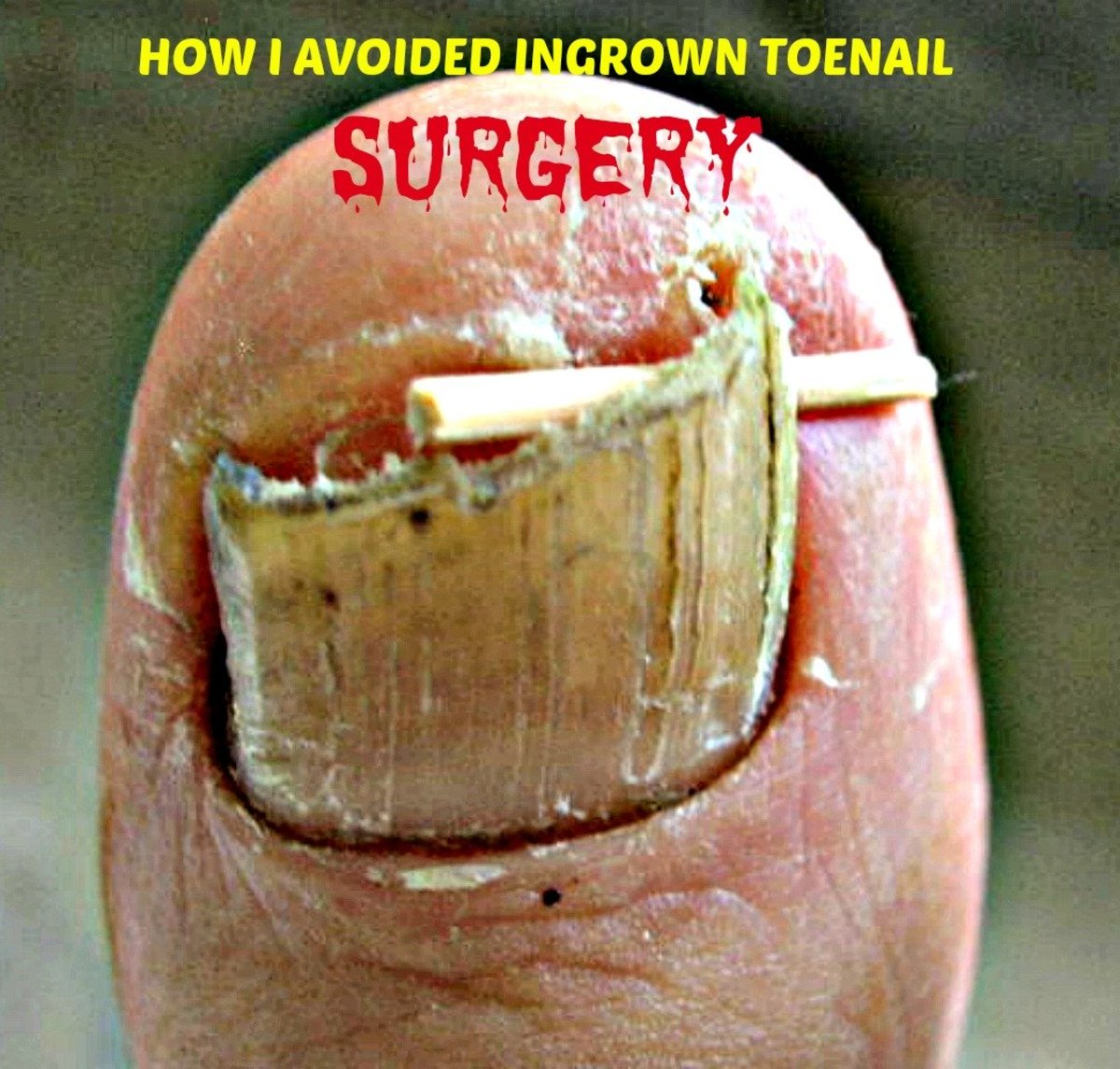 How I Avoided Ingrown Toenail Surgery