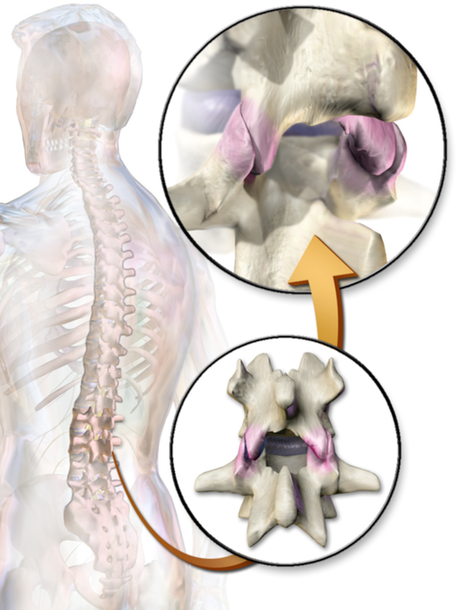 Treatment for Chronic Back Pain: Facet Injections and Radiofrequency Ablation