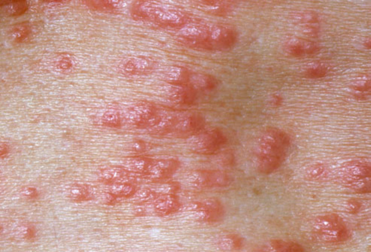Skin rash from scabies.
