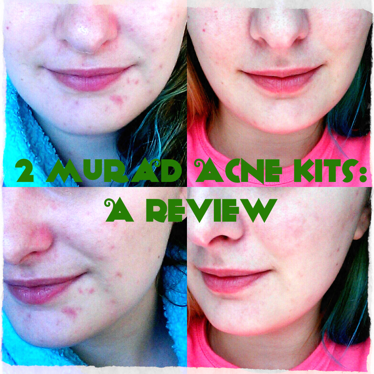 Before and after Murad acne kits.