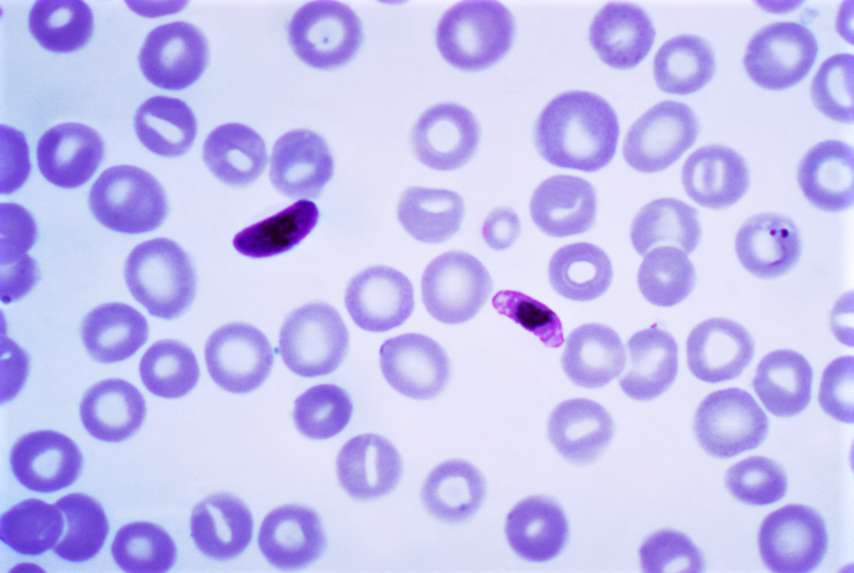Stages in the life cycle of Plasmodium falciparum (stained slide); the round cells are red blood cells