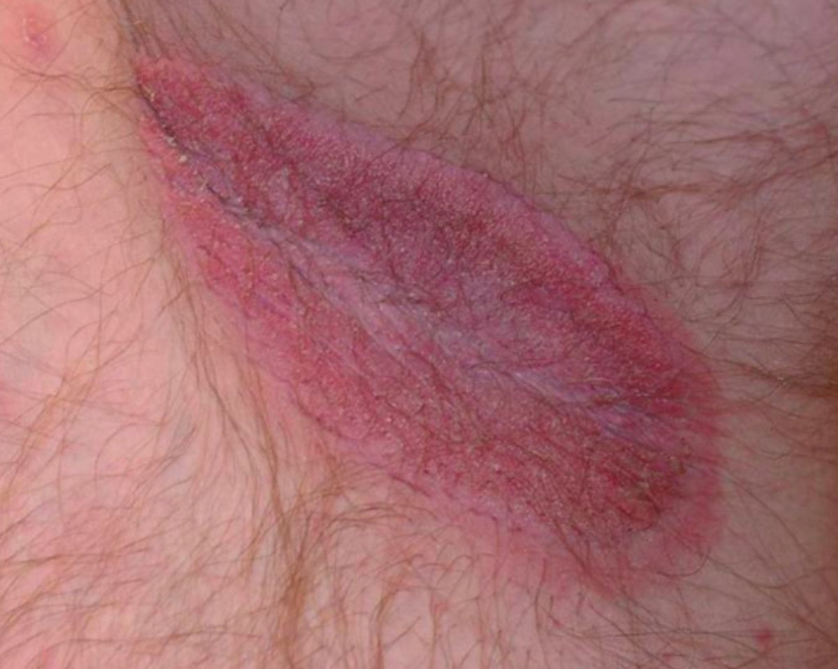 Jock itch is red, sore and itchy.