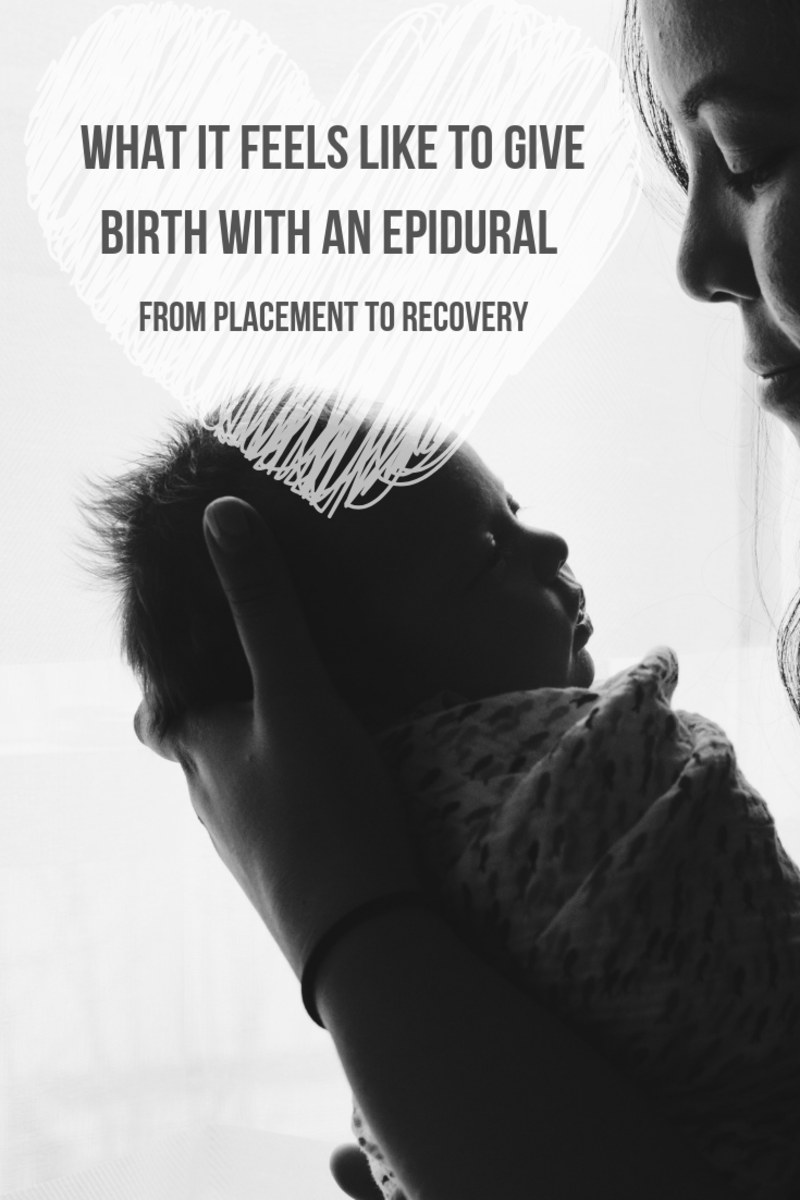 What It Feels Like to Give Birth With an Epidural