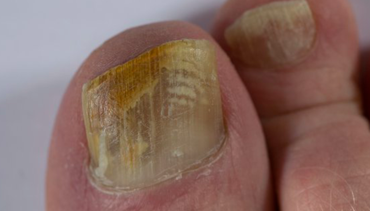 How to Get Rid of a Fungal Nail Infection Using Tea Tree Oil ...